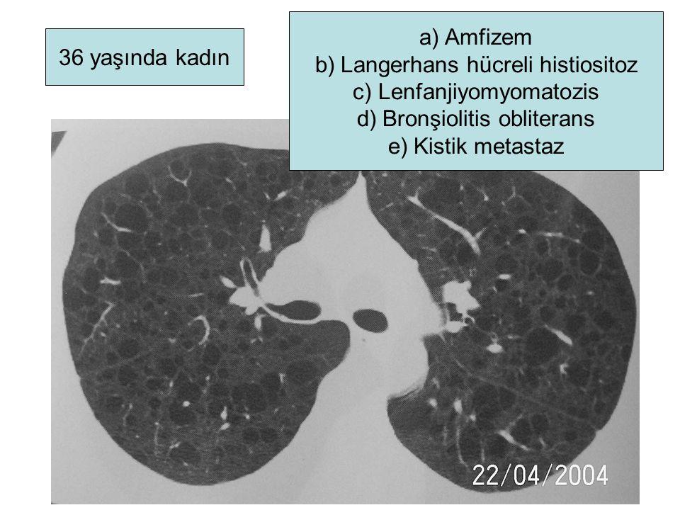 36 yaşında kadın a)Amfizem b)Langerhans hücreli histiositoz c)Lenfanjiyomyomatozis d)Bronşiolitis obliterans e)Kistik metastaz