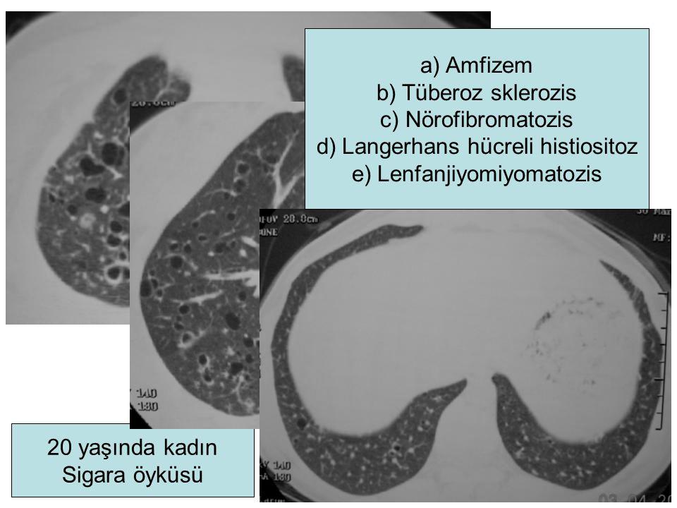 20 yaşında kadın Sigara öyküsü a)Amfizem b)Tüberoz sklerozis c)Nörofibromatozis d)Langerhans hücreli histiositoz e)Lenfanjiyomiyomatozis
