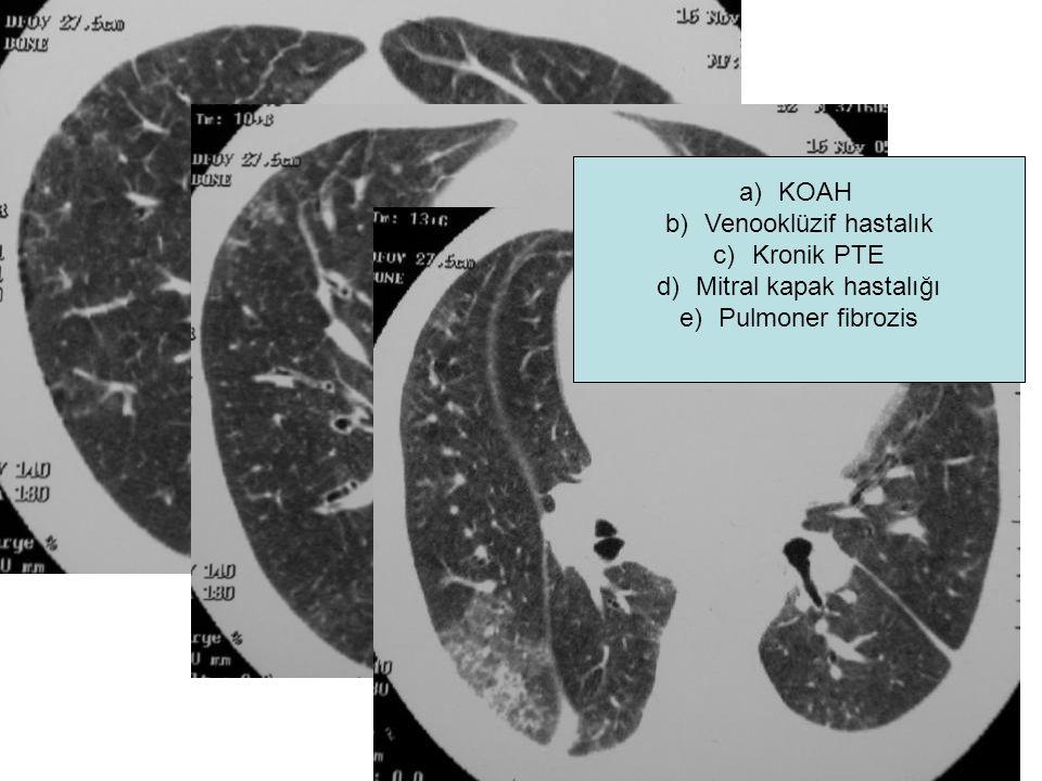 a)KOAH b)Venooklüzif hastalık c)Kronik PTE d)Mitral kapak hastalığı e)Pulmoner fibrozis