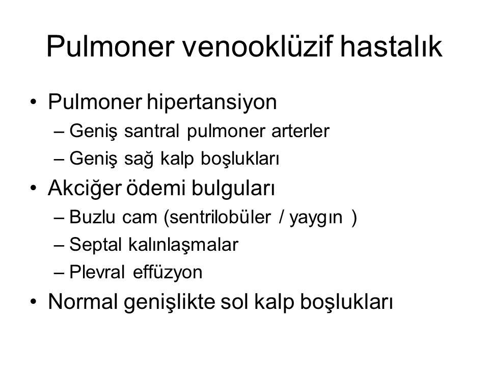 Pulmoner venooklüzif hastalık Pulmoner hipertansiyon –Geniş santral pulmoner arterler –Geniş sağ kalp boşlukları Akciğer ödemi bulguları –Buzlu cam (s