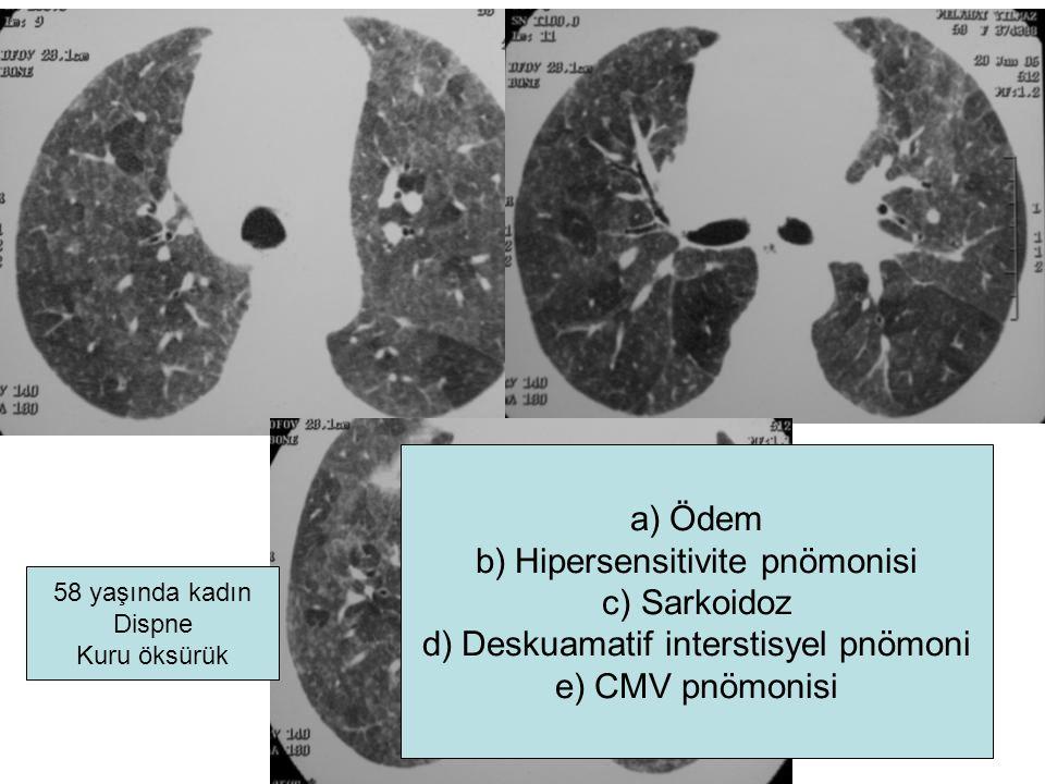 58 yaşında kadın Dispne Kuru öksürük a)Ödem b)Hipersensitivite pnömonisi c)Sarkoidoz d)Deskuamatif interstisyel pnömoni e)CMV pnömonisi