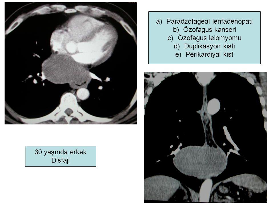 30 yaşında erkek Disfaji a)Paraözofageal lenfadenopati b)Özofagus kanseri c)Özofagus leiomyomu d)Duplikasyon kisti e)Perikardiyal kist