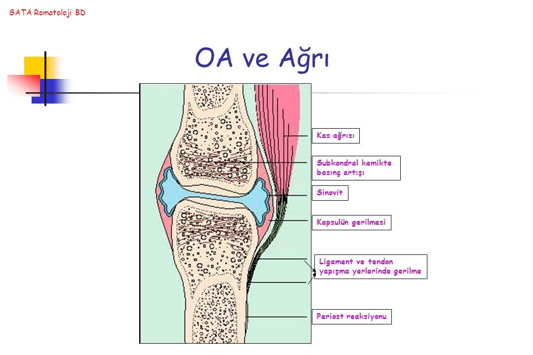 GATA Romatoloji BD Kas ağrısı Subkondral kemikte basınç artışı Sinovit Kapsulün gerilmesi Ligament ve tendon yapışma yerlerinde gerilme Periost reaksiyonu OA ve Ağrı