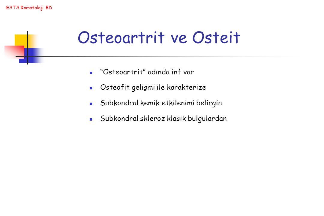 GATA Romatoloji BD Osteoartrit ve Osteit Osteoartrit adında inf var Osteofit gelişmi ile karakterize Subkondral kemik etkilenimi belirgin Subkondral skleroz klasik bulgulardan