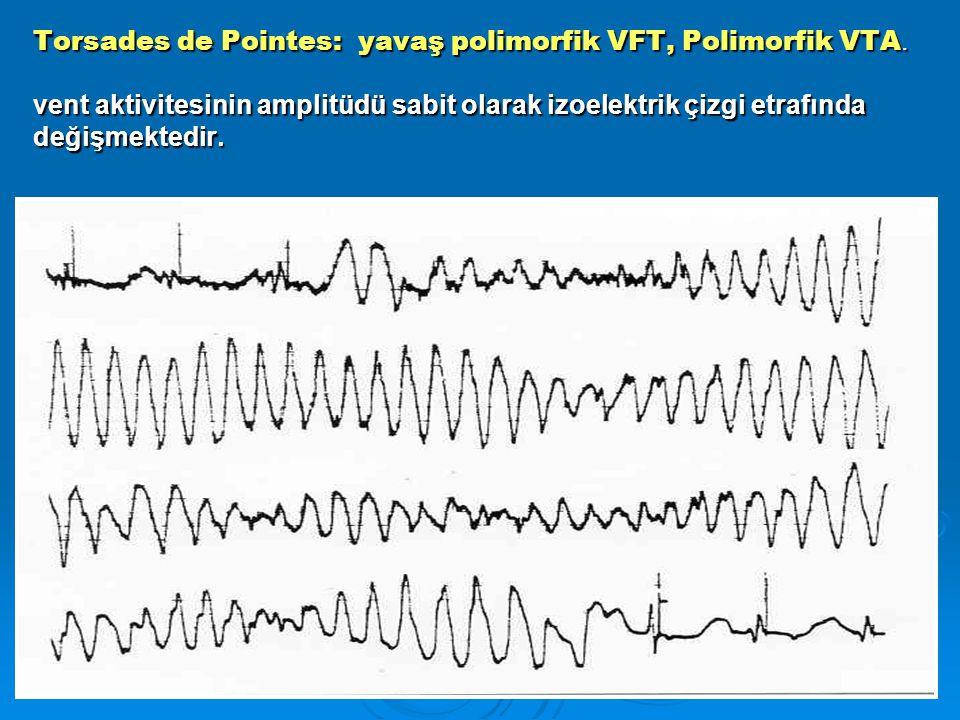 Torsades de Pointes: yavaş polimorfik VFT, Polimorfik VTA. vent aktivitesinin amplitüdü sabit olarak izoelektrik çizgi etrafında değişmektedir. Torsad