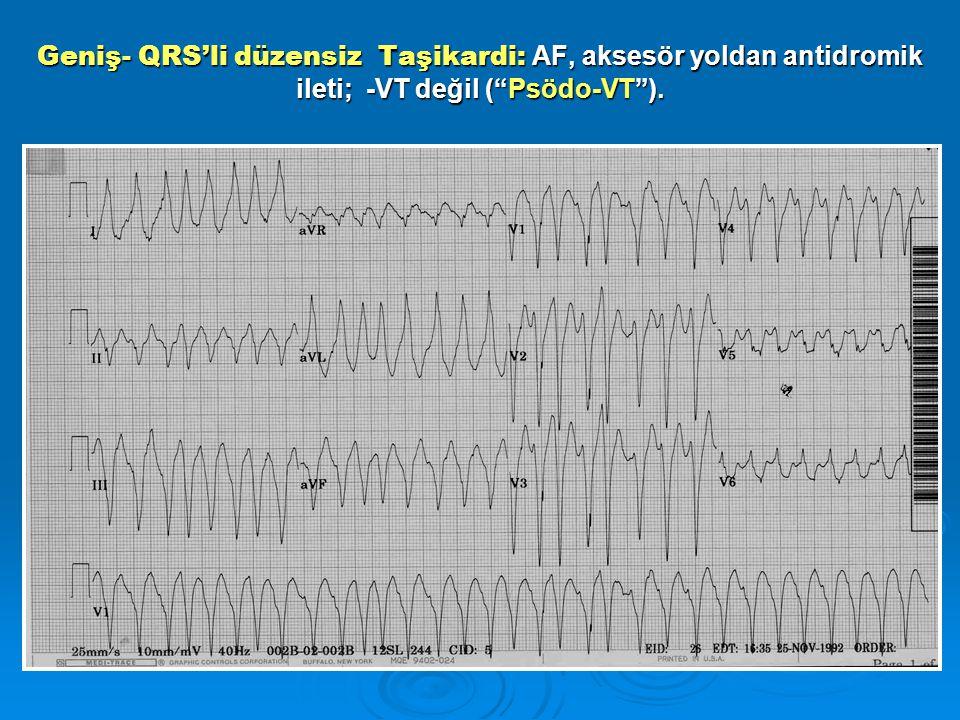 """Geniş- QRS'li düzensiz Taşikardi: AF, aksesör yoldan antidromik ileti; -VT değil (""""Psödo-VT"""")."""