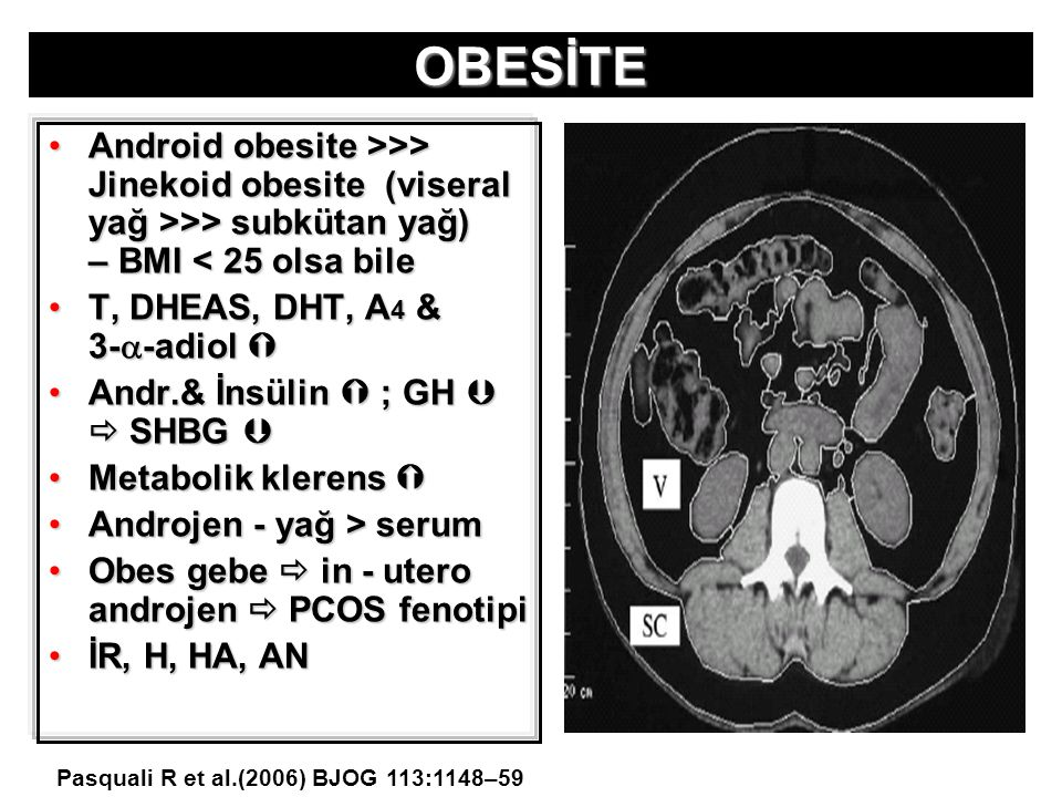 OBESİTE Android obesite >>> Jinekoid obesite (viseral yağ >>> subkütan yağ) – BMI >> Jinekoid obesite (viseral yağ >>> subkütan yağ) – BMI < 25 olsa b