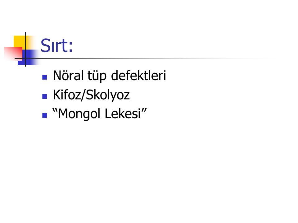 """Sırt: Nöral tüp defektleri Kifoz/Skolyoz """"Mongol Lekesi"""""""