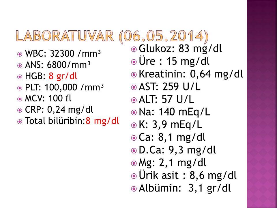  WBC: 32300 /mm³  ANS: 6800/mm³  HGB: 8 gr/dl  PLT: 100,000 /mm³  MCV: 100 fl  CRP: 0,24 mg/dl  Total bilüribin:8 mg/dl  Glukoz: 83 mg/dl  Üre : 15 mg/dl  Kreatinin: 0,64 mg/dl  AST: 259 U/L  ALT: 57 U/L  Na: 140 mEq/L  K: 3,9 mEq/L  Ca: 8,1 mg/dl  D.Ca: 9,3 mg/dl  Mg: 2,1 mg/dl  Ürik asit : 8,6 mg/dl  Albümin: 3,1 gr/dl