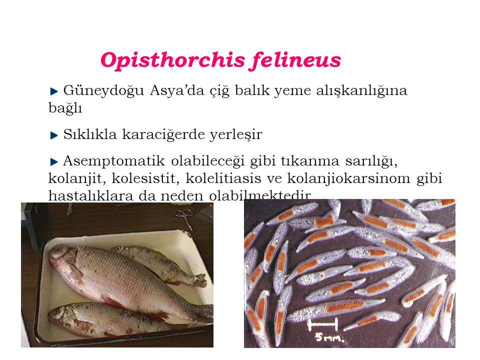 Opisthorchis felineus Güneydoğu Asya'da çiğ balık yeme alışkanlığına bağlı Sıklıkla karaciğerde yerleşir Asemptomatik olabileceği gibi tıkanma sarılığı, kolanjit, kolesistit, kolelitiasis ve kolanjiokarsinom gibi hastalıklara da neden olabilmektedir