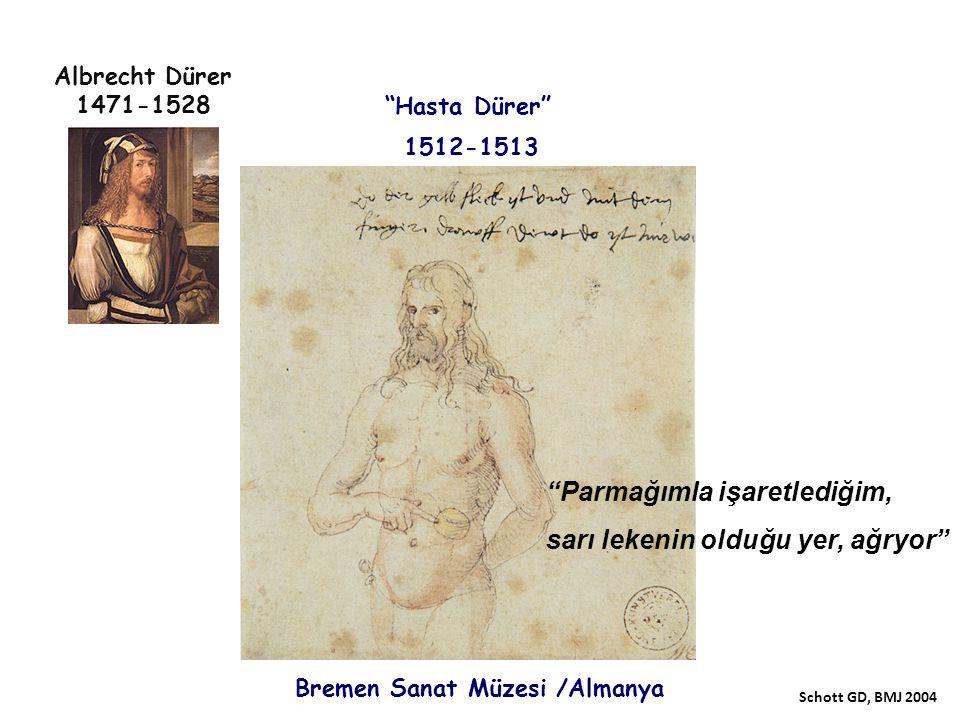 """1512-1513 Albrecht Dürer 1471-1528 """"Hasta Dürer"""" """"Parmağımla işaretlediğim, sarı lekenin olduğu yer, ağryor"""" Bremen Sanat Müzesi /Almanya Schott GD, B"""
