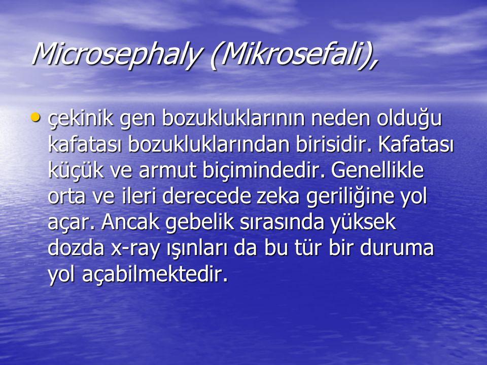 Microsephaly (Mikrosefali), çekinik gen bozukluklarının neden olduğu kafatası bozukluklarından birisidir. Kafatası küçük ve armut biçimindedir. Genell