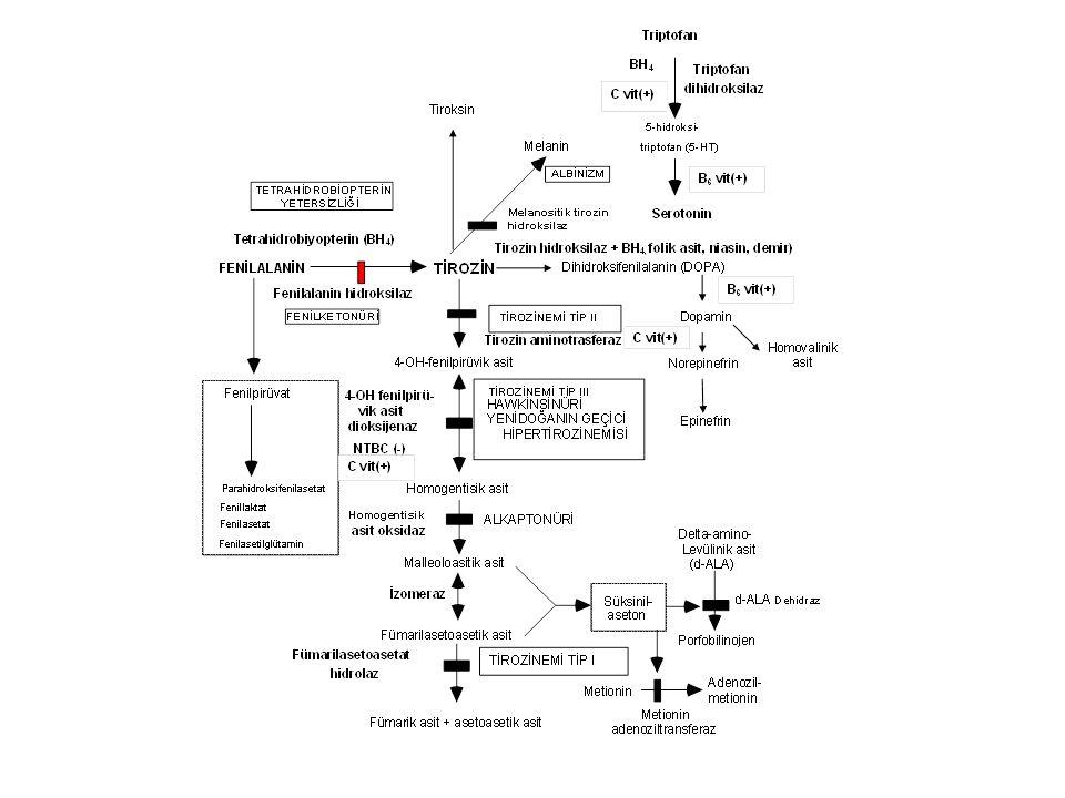Tirozinemi Tip I- Klinik bulgular Enzim defekti: Fumarilasetoasetat hidroksilaz Klinik bulgular Akut infantil form: Ağır karaciğer yetersizliği, kusma, kanamalar, sepsis, renal tubulopati (Fanconi sendromu) Kronik form: Hepatomegali, siroz, büyüme geriliği, rahitis, hematom, tübülopati, periferik nöropati ve karın ağrıları (d-ALA artışı)