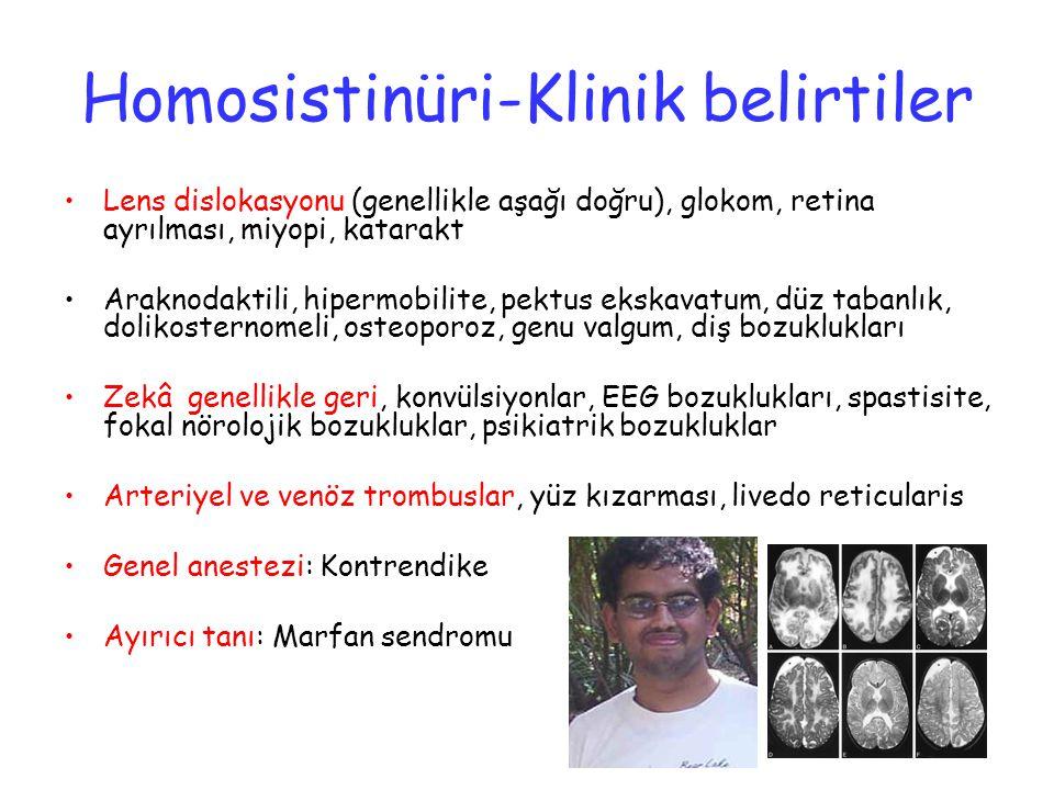 Homosistinüri-Klinik belirtiler Lens dislokasyonu (genellikle aşağı doğru), glokom, retina ayrılması, miyopi, katarakt Araknodaktili, hipermobilite, p