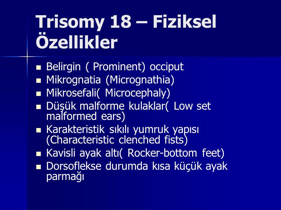 Trisomy 18 – Fiziksel Özellikler Belirgin ( Prominent) occiput Mikrognatia (Micrognathia) Mikrosefali( Microcephaly) Düşük malforme kulaklar( Low set