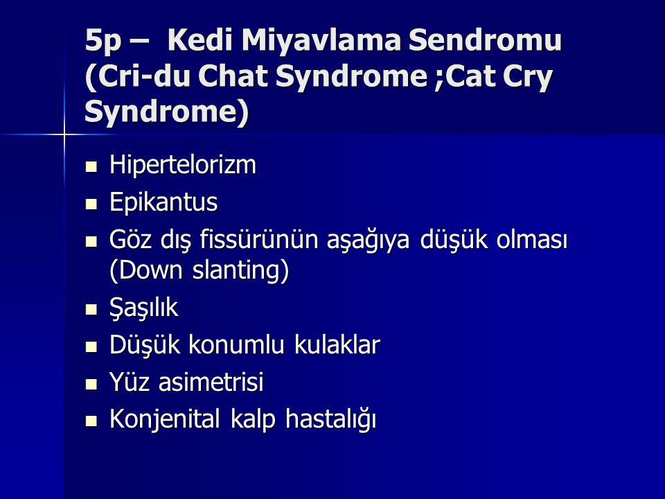 5p – Kedi Miyavlama Sendromu (Cri-du Chat Syndrome ;Cat Cry Syndrome) Hipertelorizm Hipertelorizm Epikantus Epikantus Göz dış fissürünün aşağıya düşük