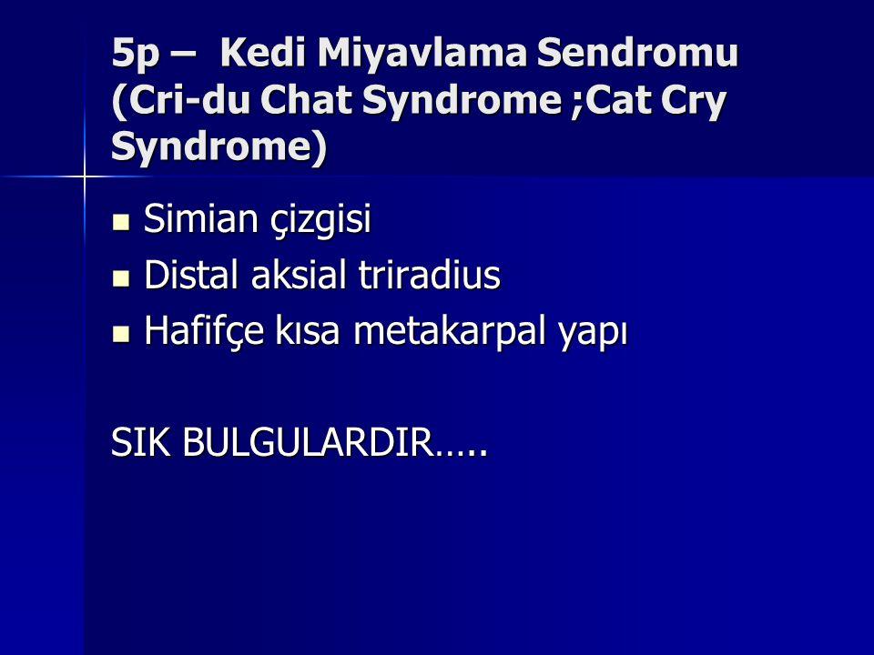 5p – Kedi Miyavlama Sendromu (Cri-du Chat Syndrome ;Cat Cry Syndrome) Simian çizgisi Simian çizgisi Distal aksial triradius Distal aksial triradius Ha