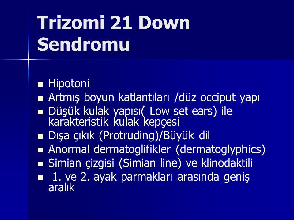 Trizomi 21 Down Sendromu Hipotoni Artmış boyun katlantıları /düz occiput yapı Düşük kulak yapısı( Low set ears) ile karakteristik kulak kepçesi Dışa ç