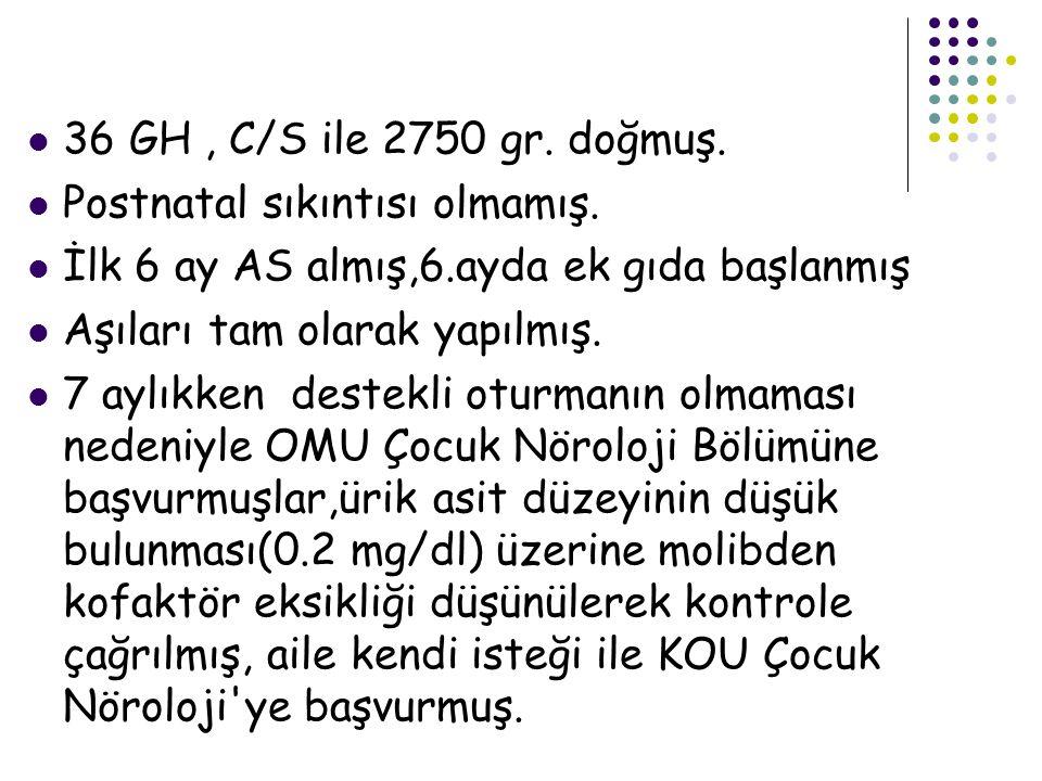 Immunglobülin: IgA: 25 mg/dl(21) IgM: 25 mg/dl(49) IgG: 247 mg/dl(488) kombine immün yetmezlik olarak değerlendirilen hasta ürik asid düşüklüğü ve nöromotor gelişim geriliği ile birlikte değerlendirildiğinde ön tanı olarak pürin nükleozid fosforilaz eksikliği düşünüldü.