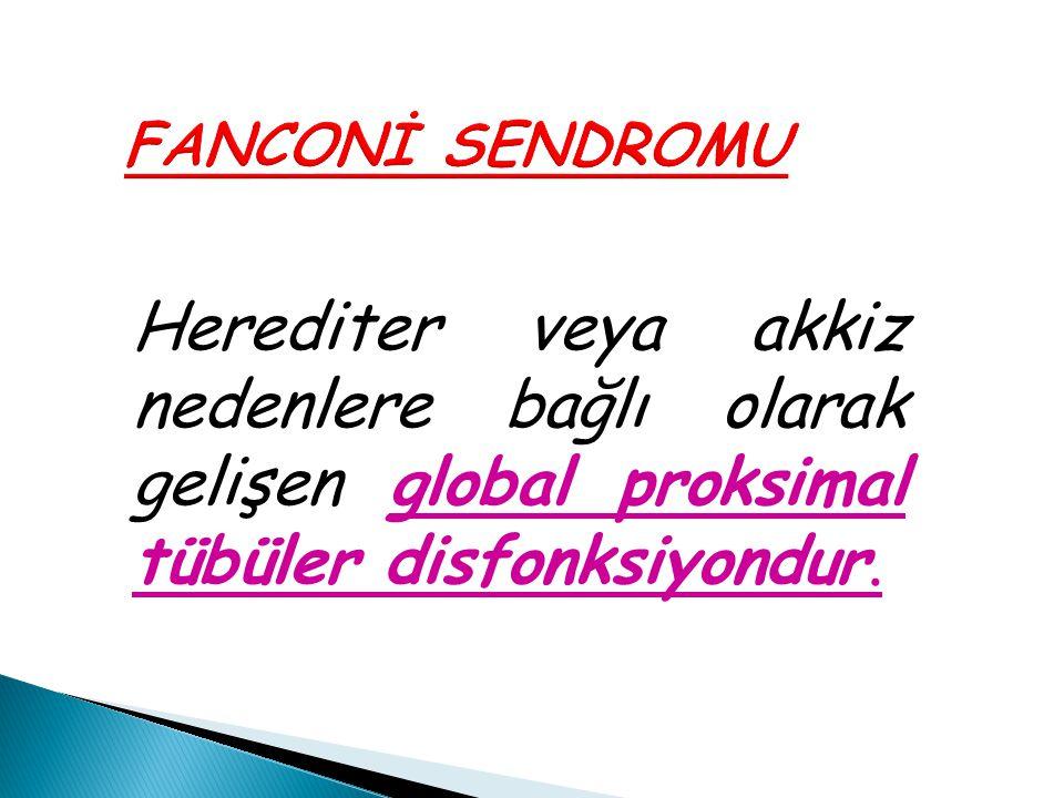 FANCONİ SENDROMU Herediter veya akkiz nedenlere bağlı olarak gelişen global proksimal tübüler disfonksiyondur.