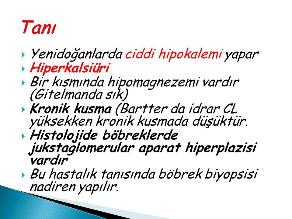  Yenidoğanlarda ciddi hipokalemi yapar  Hiperkalsiüri  Bir kısmında hipomagnezemi vardır (Gitelmanda sık)  Kronik kusma (Bartter da idrar CL yükse
