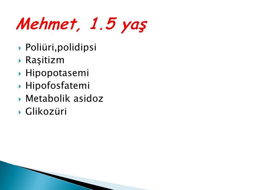  Poliüri,polidipsi  Raşitizm  Hipopotasemi  Hipofosfatemi  Metabolik asidoz  Glikozüri