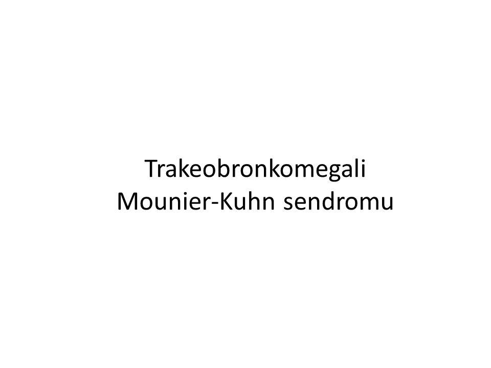 Trakeobronkomegali Mounier-Kuhn sendromu