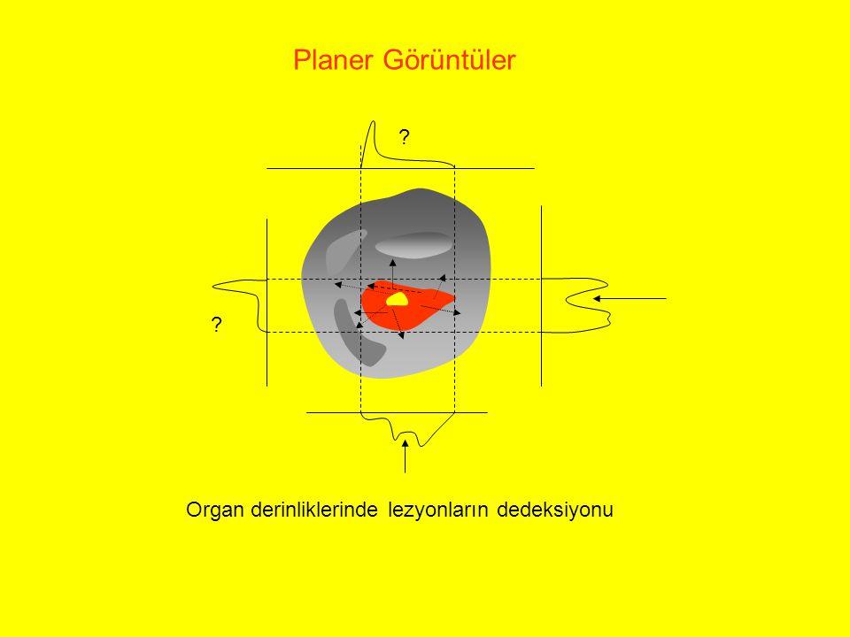Planer Görüntüler Organ derinliklerinde lezyonların dedeksiyonu ? ?