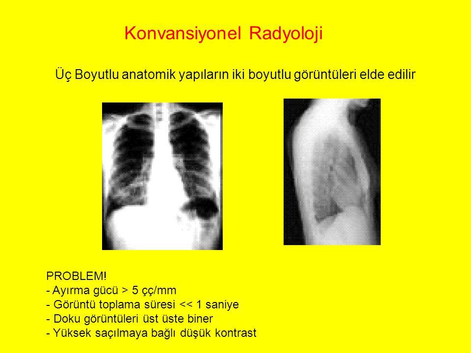 Konvansiyonel Radyoloji Üç Boyutlu anatomik yapıların iki boyutlu görüntüleri elde edilir PROBLEM! - Ayırma gücü > 5 çç/mm - Görüntü toplama süresi <<