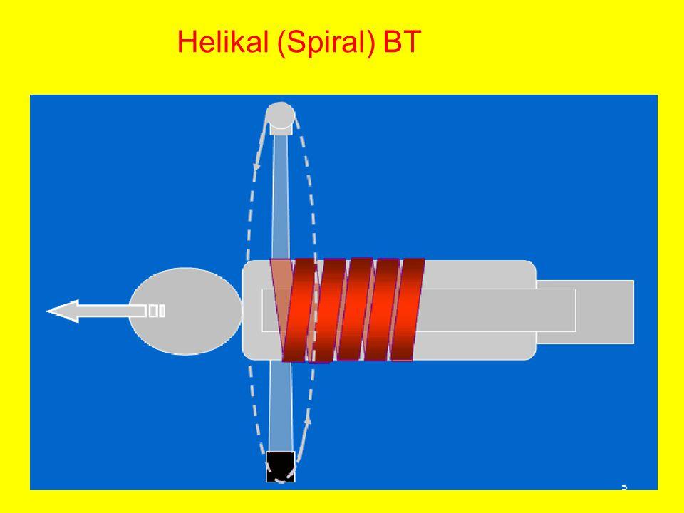 Helikal (Spiral) BT