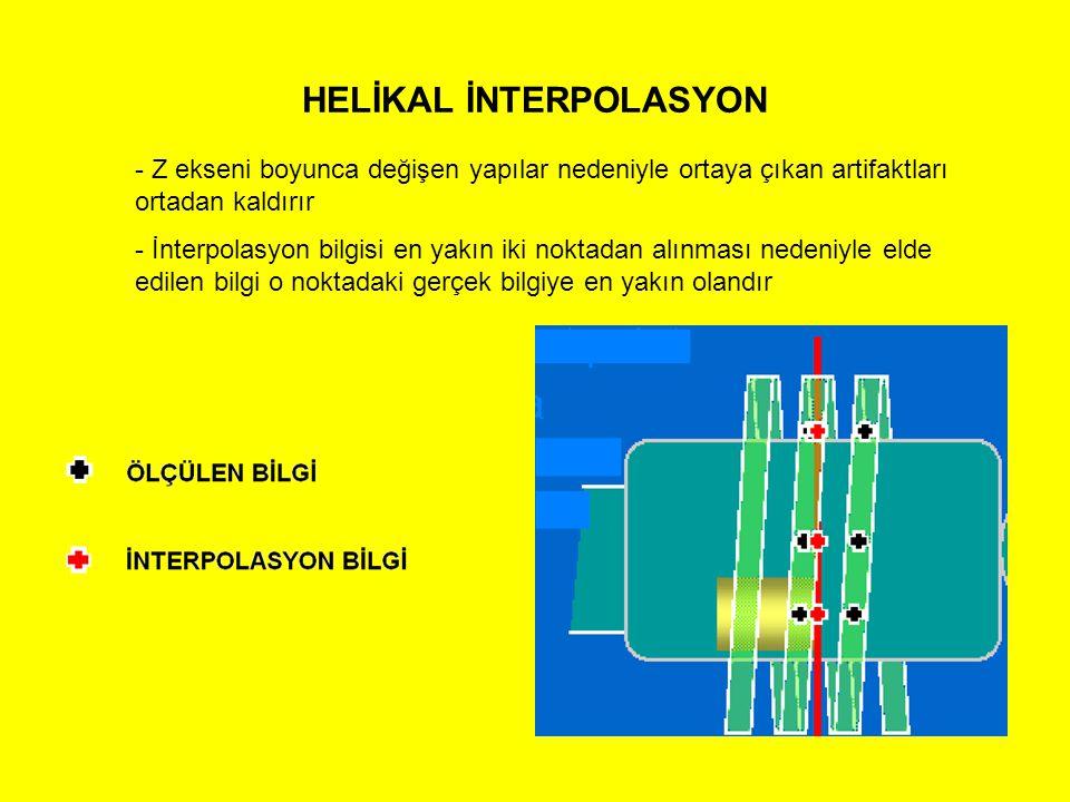 HELİKAL İNTERPOLASYON - Z ekseni boyunca değişen yapılar nedeniyle ortaya çıkan artifaktları ortadan kaldırır - İnterpolasyon bilgisi en yakın iki nok