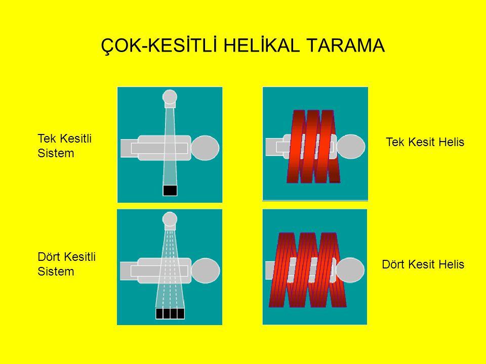 ÇOK-KESİTLİ HELİKAL TARAMA Tek Kesitli Sistem Dört Kesitli Sistem Tek Kesit Helis Dört Kesit Helis