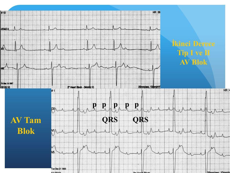 İkinci Derece Tip I ve II AV Blok AV Tam Blok pppp QRS p