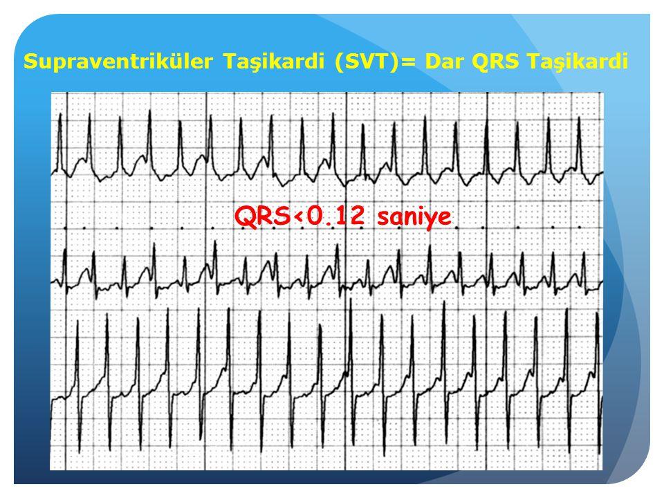 Supraventriküler Taşikardi (SVT)= Dar QRS Taşikardi QRS<0.12 saniye