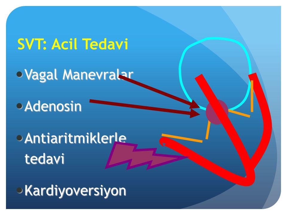 SVT: Acil Tedavi Vagal Manevralar Vagal Manevralar Adenosin Adenosin Antiaritmiklerle tedavi Antiaritmiklerle tedavi Kardiyoversiyon Kardiyoversiyon