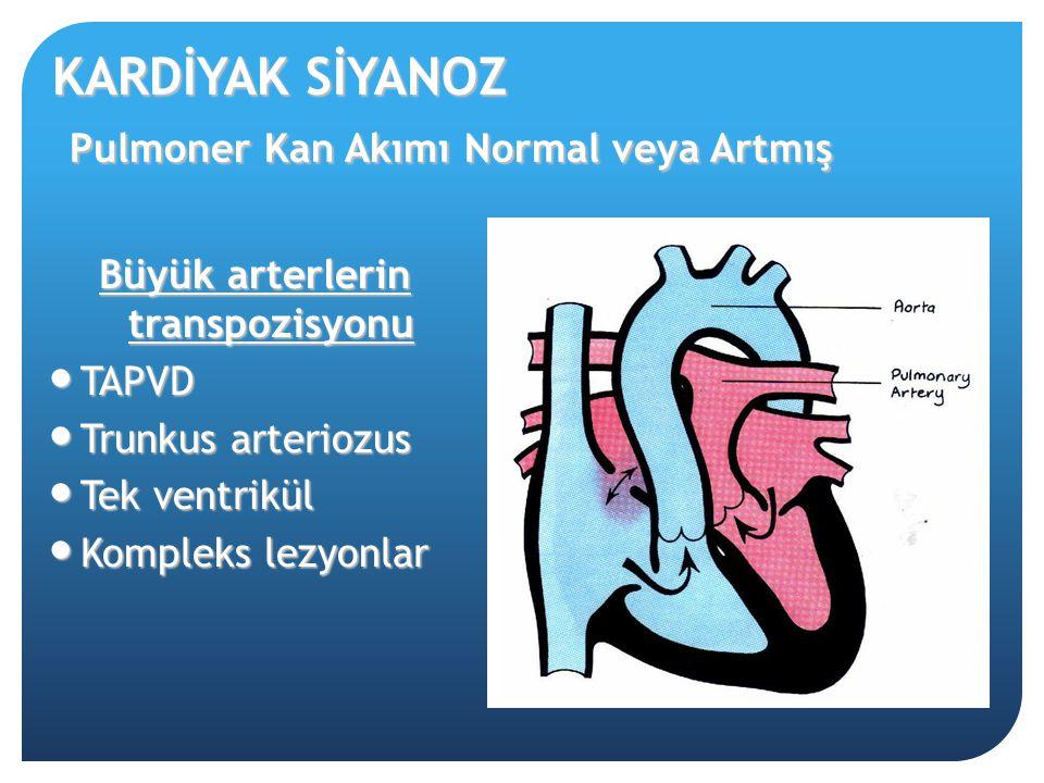 KARDİYAK SİYANOZ Pulmoner Kan Akımı Normal veya Artmış Büyük arterlerin transpozisyonu TAPVD TAPVD Trunkus arteriozus Trunkus arteriozus Tek ventrikül