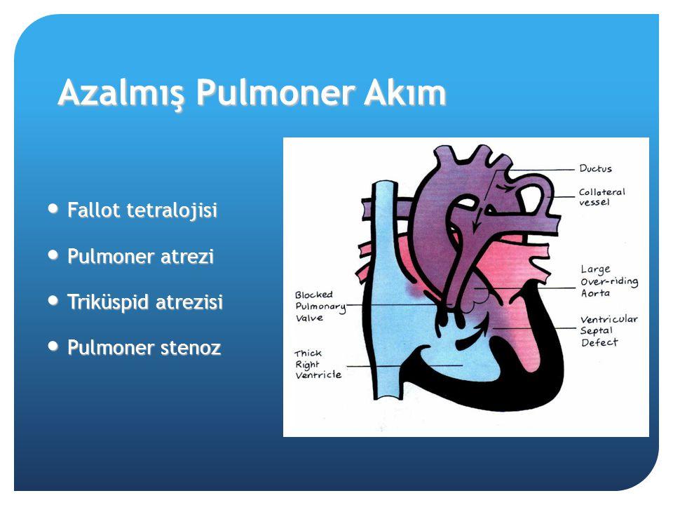Azalmış Pulmoner Akım Fallot tetralojisi Fallot tetralojisi Pulmoner atrezi Pulmoner atrezi Triküspid atrezisi Triküspid atrezisi Pulmoner stenoz Pulm