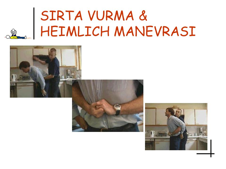 SIRTA VURMA & HEIMLICH MANEVRASI