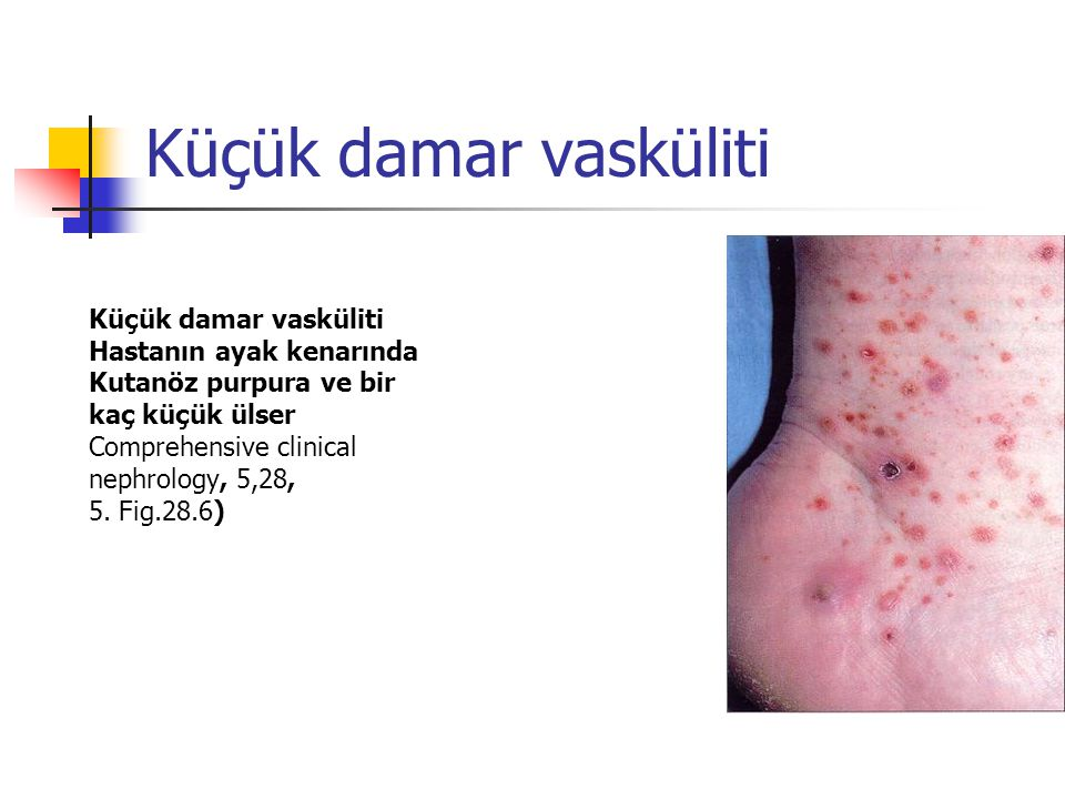 Küçük damar vasküliti Hastanın ayak kenarında Kutanöz purpura ve bir kaç küçük ülser Comprehensive clinical nephrology, 5,28, 5. Fig.28.6)