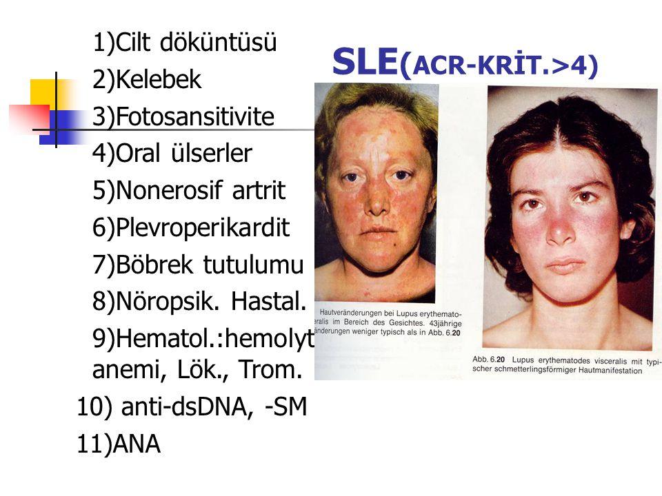 SLE ( ACR-KRİT.>4) 1)Cilt döküntüsü 2)Kelebek 3)Fotosansitivite 4)Oral ülserler 5)Nonerosif artrit 6)Plevroperikardit 7)Böbrek tutulumu 8)Nöropsik. Ha