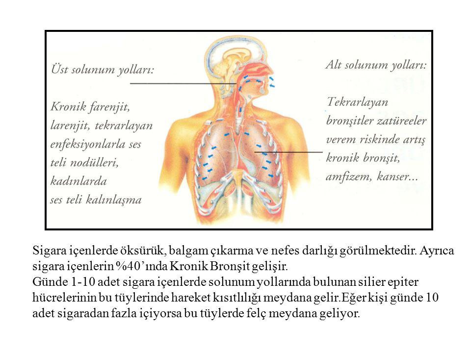 Bupropion-Kontrendikasyon Aktif ya da geçirilmiş epilepsi anamnezi MSS travma, cerrahi ve felç öyküsü.