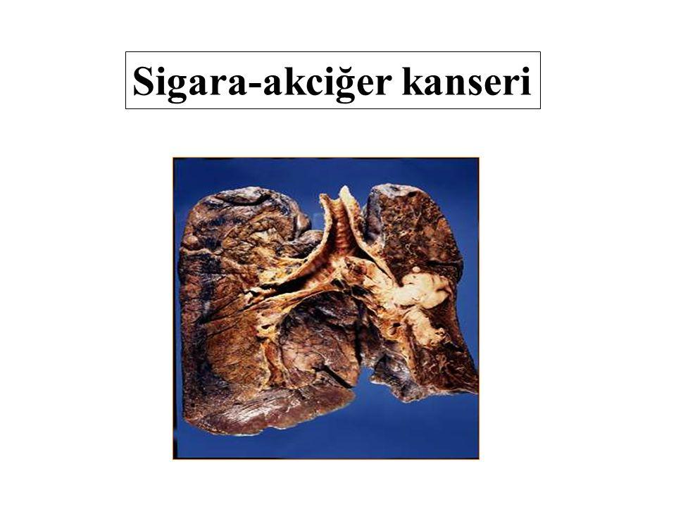Sigara-akciğer kanseri