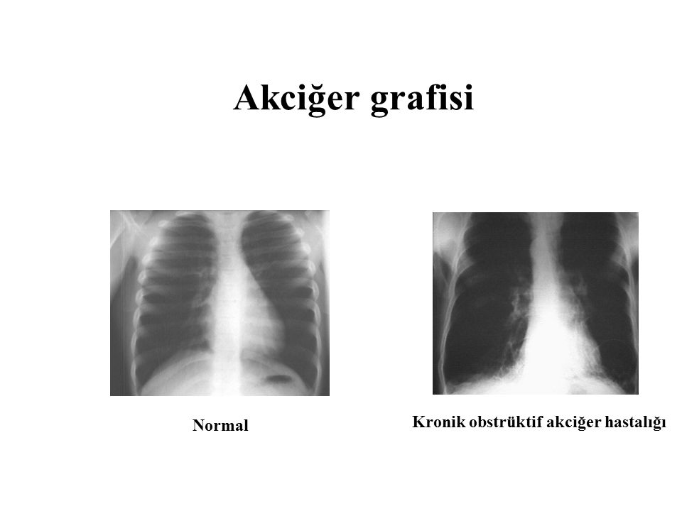 Akciğer grafisi Normal Kronik obstrüktif akciğer hastalığı