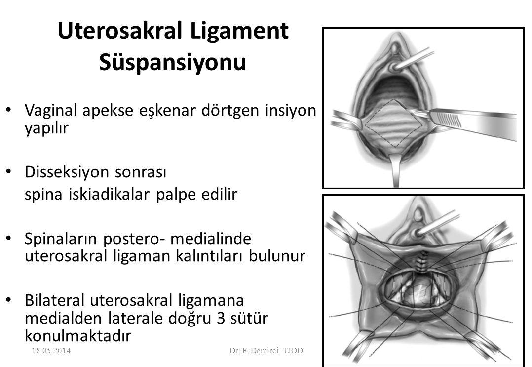 Uterosakral Ligament Süspansiyonu Vaginal apekse eşkenar dörtgen insiyon yapılır Disseksiyon sonrası spina iskiadikalar palpe edilir Spinaların postero- medialinde uterosakral ligaman kalıntıları bulunur Bilateral uterosakral ligamana medialden laterale doğru 3 sütür konulmaktadır 18.05.201413Dr.