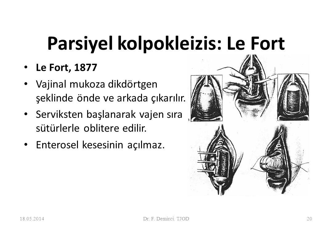 Le Fort kolpokleizis 18.05.201421Dr. F. Demirci. TJOD