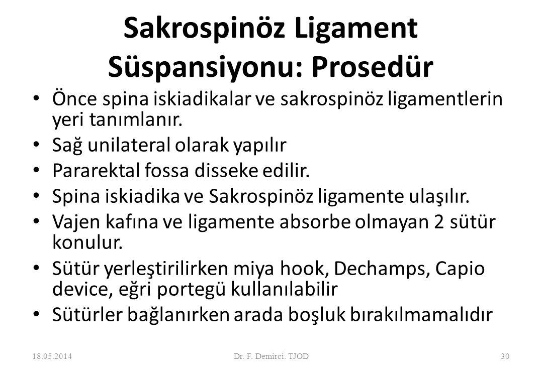 Sakrospinöz Ligament Süspansiyonu : Ekipman Deschamps Miya hook 18.05.201431 Capio device Dr.