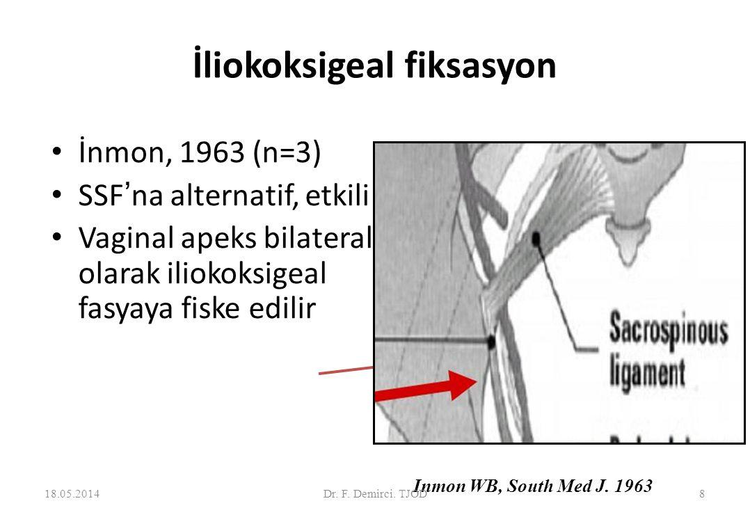 İliokoksigeal fiksasyon İnmon, 1963 (n=3) SSF'na alternatif, etkili Vaginal apeks bilateral olarak iliokoksigeal fasyaya fiske edilir Inmon WB, South Med J.
