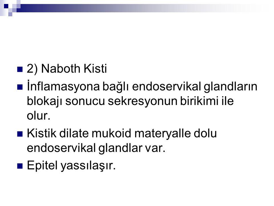 2) Naboth Kisti İnflamasyona bağlı endoservikal glandların blokajı sonucu sekresyonun birikimi ile olur. Kistik dilate mukoid materyalle dolu endoserv