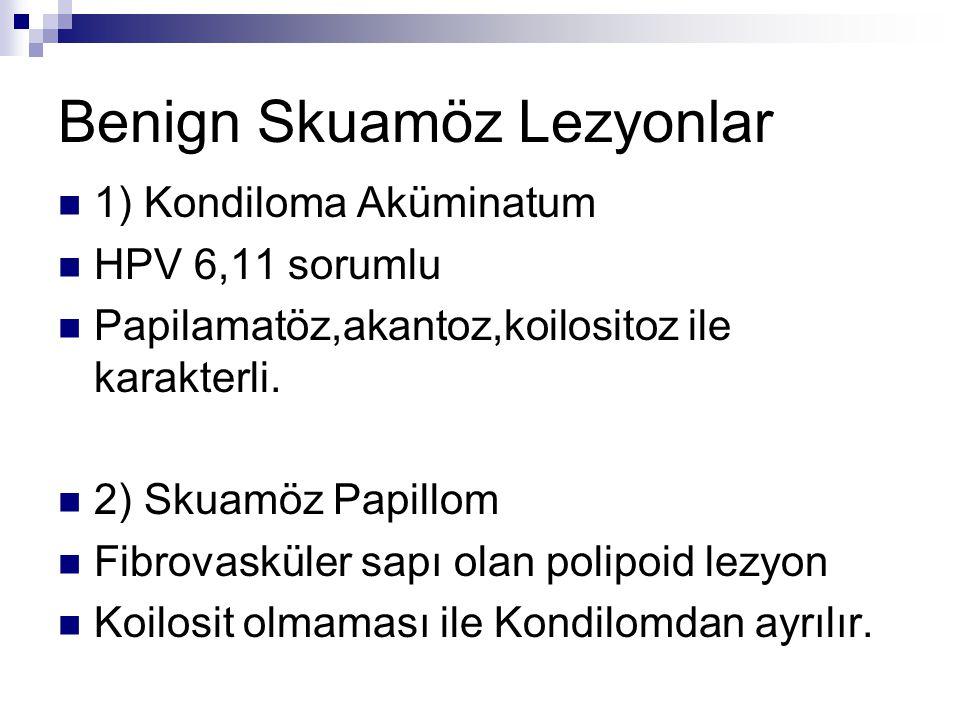 Benign Skuamöz Lezyonlar 1) Kondiloma Aküminatum HPV 6,11 sorumlu Papilamatöz,akantoz,koilositoz ile karakterli. 2) Skuamöz Papillom Fibrovasküler sap