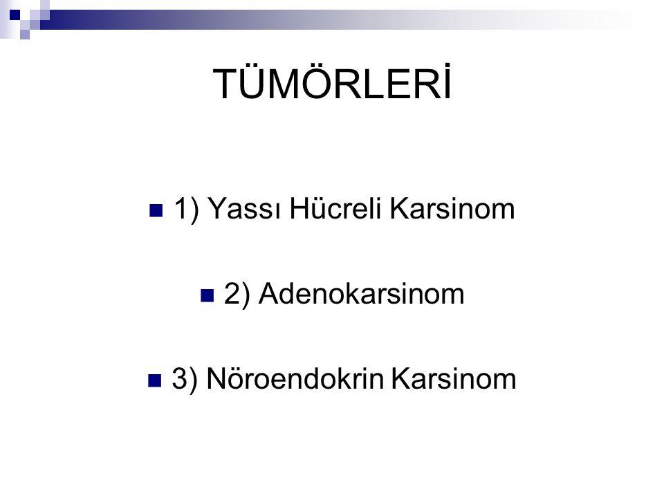 TÜMÖRLERİ 1) Yassı Hücreli Karsinom 2) Adenokarsinom 3) Nöroendokrin Karsinom